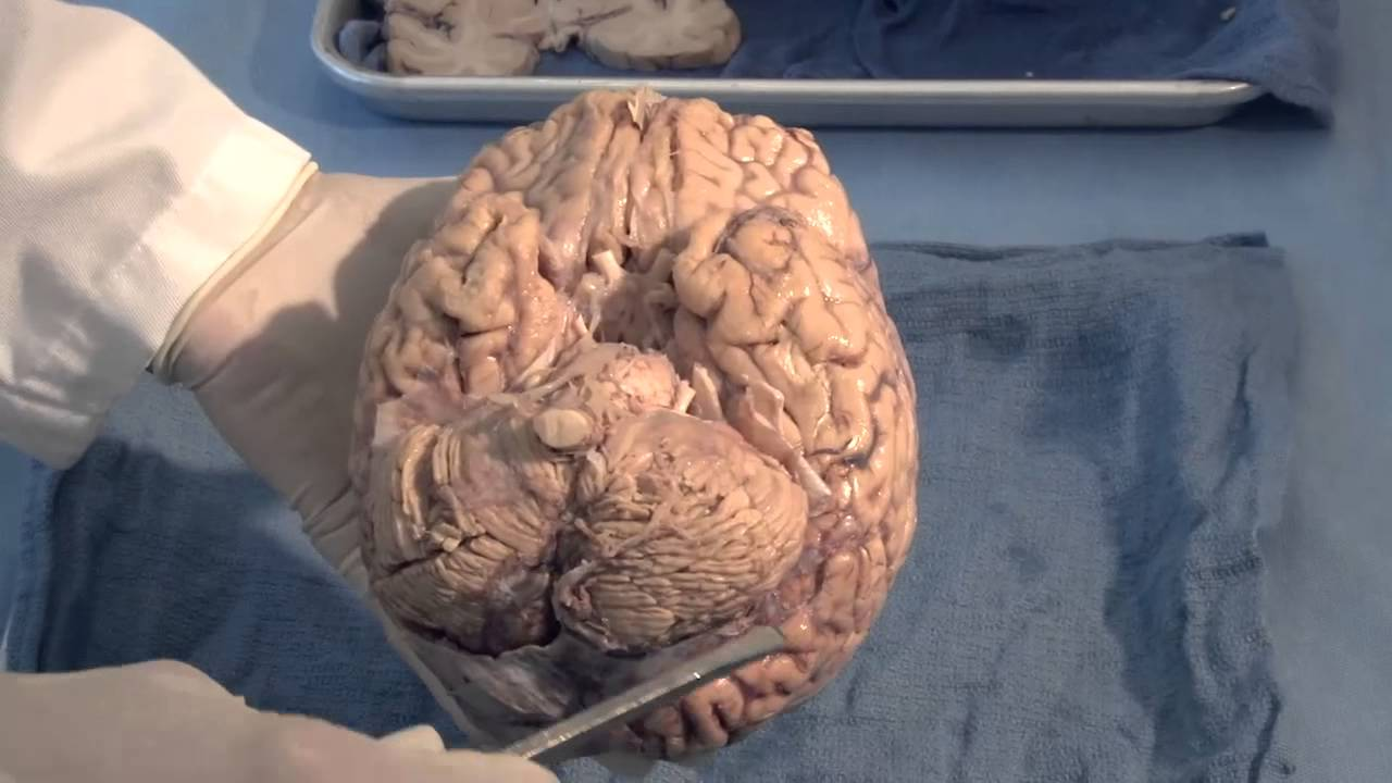 Orientation - The Planes of the Brain: Neuroanatomy Video Lab - Brain  Dissections