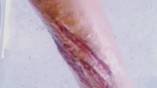 Qrim kesilmi l (порезанная рука)