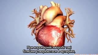 видео Підвищений артеріальний тиск у підлітків