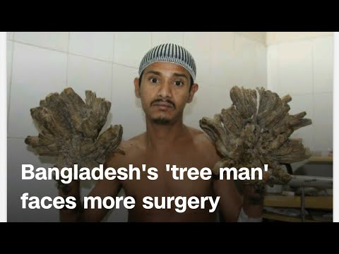 Keith and Tony - Man With Trees For Hands Is Back For Another Surgery