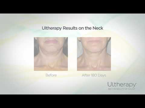 Ultherapy non surgical anti aging treatments