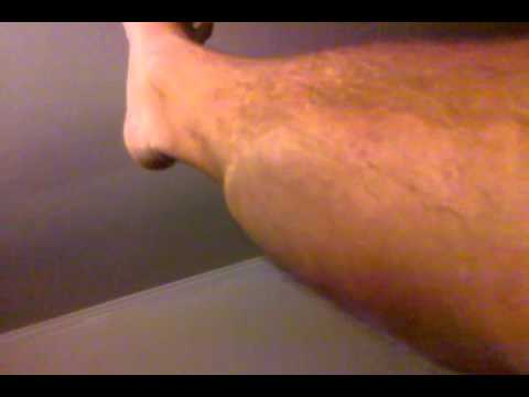 INTENSE Calf Cramp with spasms - Awesome/painful/gross - YouTube