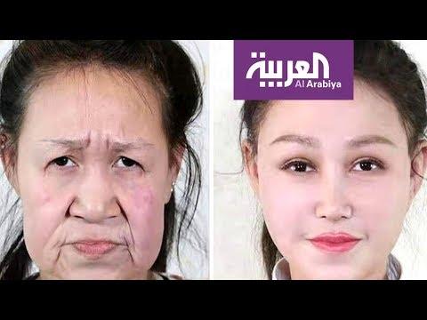 صباح العربية | بعد سنوات من التنمر حصلت هذه الفتاة على وجه جديد  - 12:00-2020 / 1 / 21