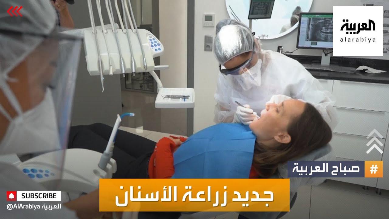 صباح العربية | جديد تقنيات زراعة الأسنان  - نشر قبل 3 ساعة