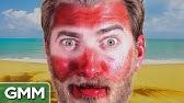 7 Unbelievable Sunburns