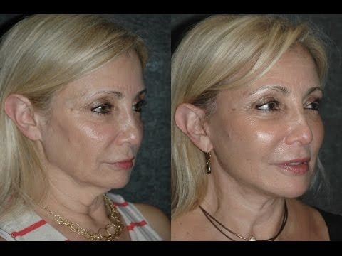 Local Anesthesia Neck Lift Before And After Year Old With Turkey Neck And Jowls