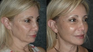 Local Anesthesia Neck Lift And After Year Old Turkey Neck And Jowls