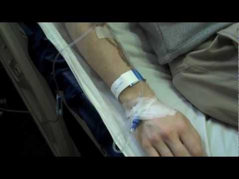 Hodgkin lymphoma: Chemotherapy, round 1 [Hodgkin