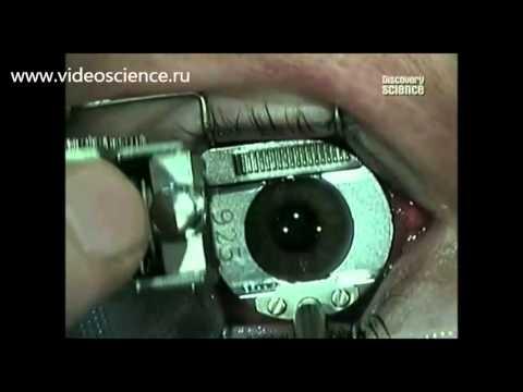 Лазерная коррекция зрения - YouTube
