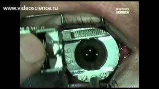 Лазерная коррекция зрения(Больше интересного и познавательного видео на сайте : http://www.videoscience.ru Лазерная коррекция зрения поможет..., 2013-02-09T14:54:01.000Z)
