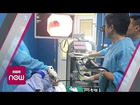 Viện K: Công nghệ mới chữa khỏi ung thư thực quản   VTC Now