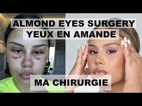 MA CHIRURGIE DES YEUX EN AMANDE / FOX EYES & ALMOND EYES / PONYTAIL LIFT