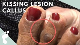 How to Get Rid of a Kissing Lesion Callus