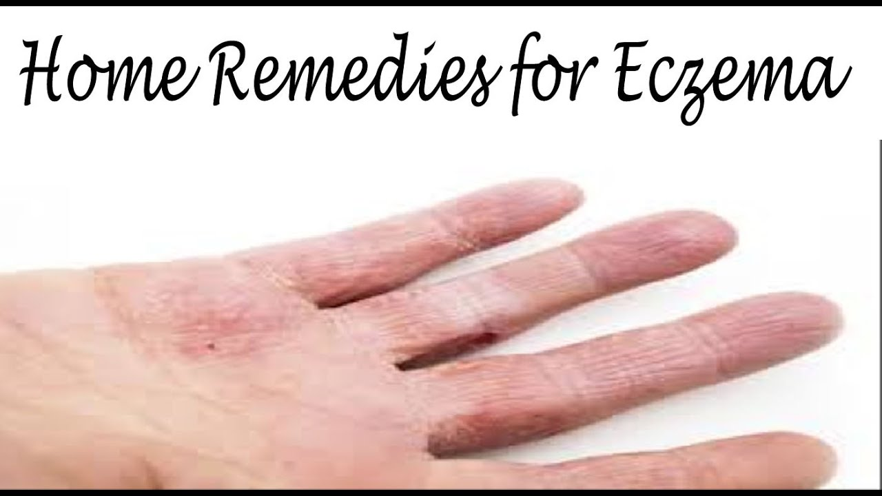Top 5 Simple, Safe and Natural Eczema Treatment Options  - Read on to find out the various natural eczema treatment options that can cure eczema permanently and naturally in just 14 days.