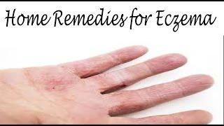 दाद, खाज, खुजली का घरेलू इलाज | Natural Home Remedies for Eczema & Itching