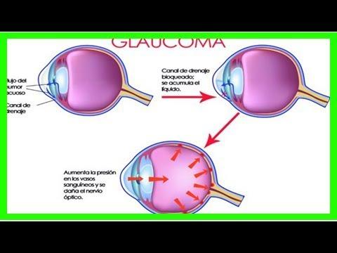 Cómo reducir la presión ocular para evitar el glaucoma