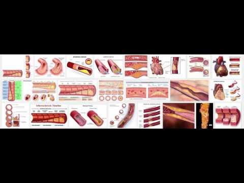 Cardiovascular - Atherosclerosis, Acute coronary syndrome