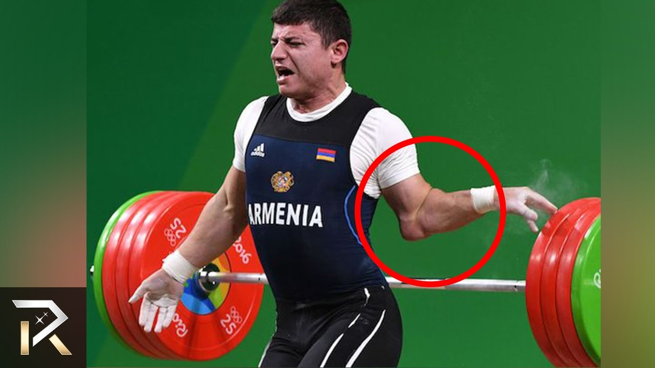 Download 10 Painful Sports Injuries Caught On Camera