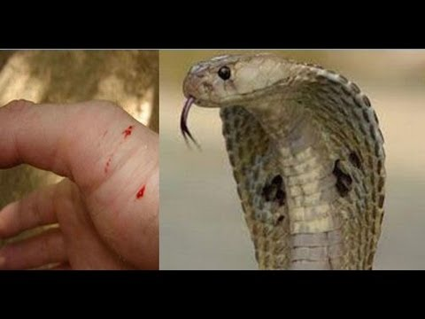Treatment of Snake Bite ( Cheap And Best ) By Rajiv Dixit