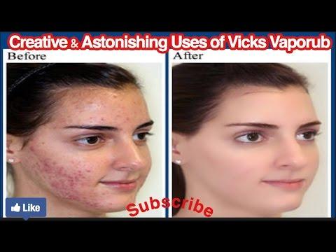 Vicks for acne