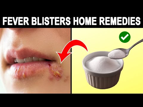Amazing Home Reme For Fever Blisters In Mouth