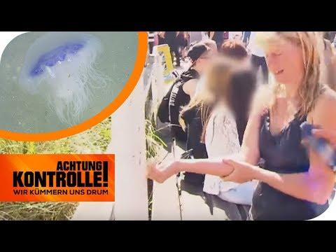 Quallenstich In Der Ostsee! Was Hilft Gegen Schmerzen? DLRG Hilft! | Achtung Kontrolle | Kabel Eins