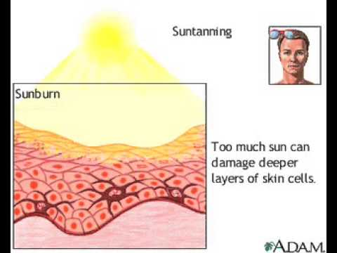 effects of tanning Sunless tanning, also known as self-tanning, uses chemical processes to achieve a perfect summer glow without the harmful side effects of prolonged sun exposure according to dermnet nz, dihydroxyacetone was the most popular sunless tanning option in 2009.