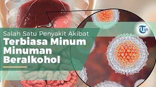 Patofisiologis Sirosis Hepatis.