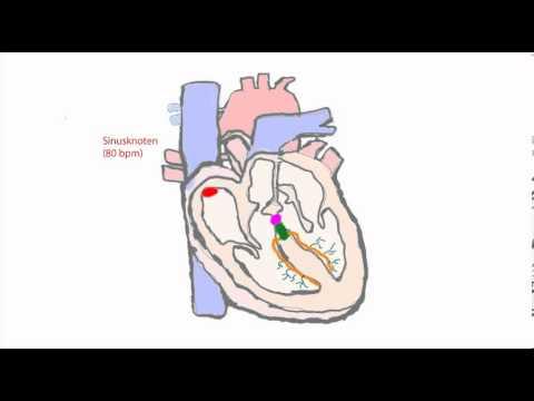Erregungsleitungssystem des Herzens (u.a. für die PT Prüfung).avi ...
