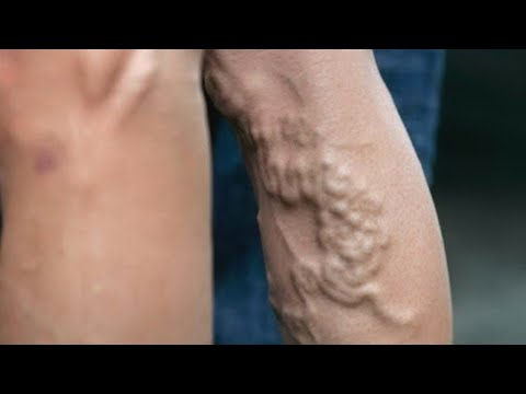 Как лечить варикозное расширение вен на ногах?  | Доктор Мясников