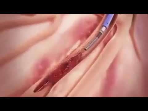 The complete blood clotting cure methodology by new medical science technology