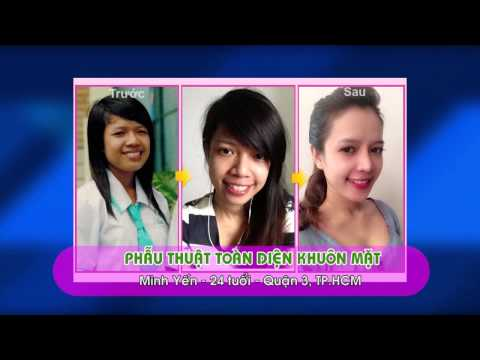 Phẫu thuật thẩm mỹ toàn diện khuôn mặt  Thẩm mỹ Hàn Quốc JW
