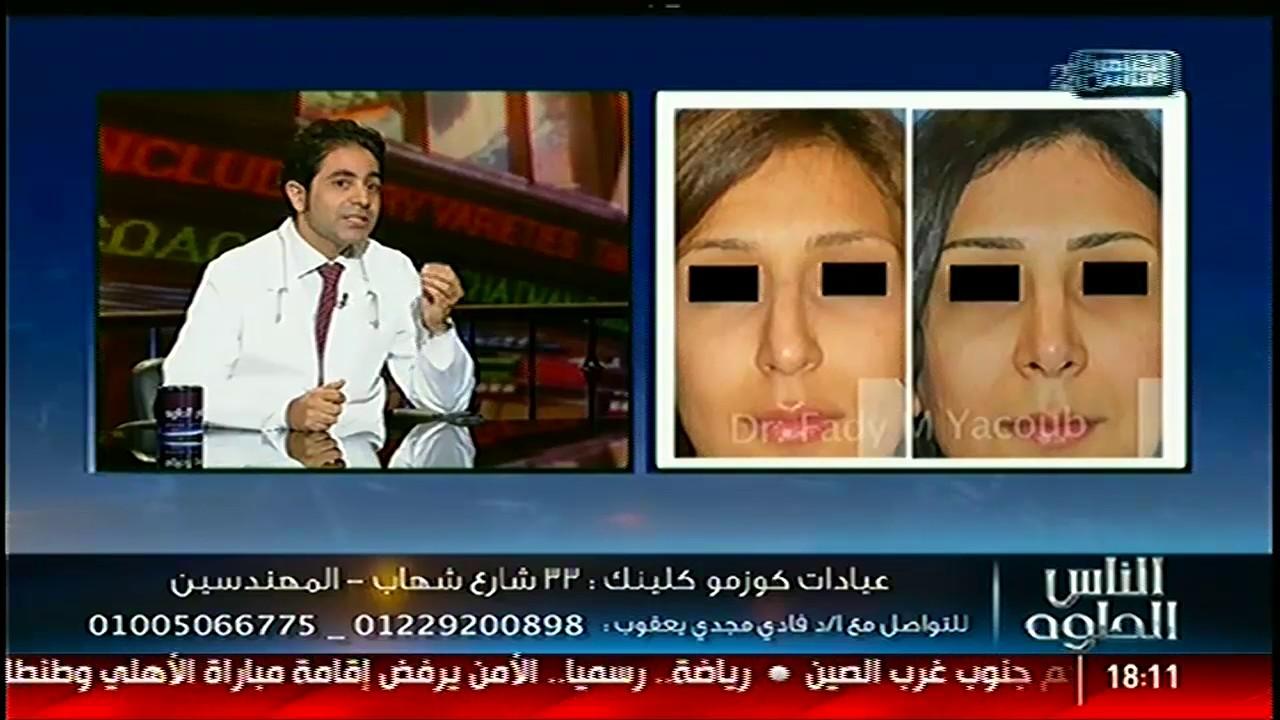 الناس الحلوة جراحات تجميل الانف مع دفادى مجدى يعقوب