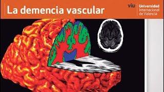 Cerebrovascular demência sintomas de