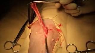 Pan-histerectomia em cadela