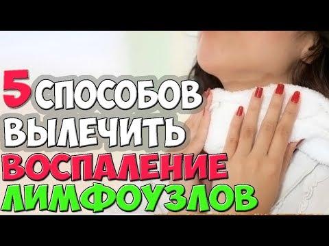 Как лечить лимфоузлы на горле