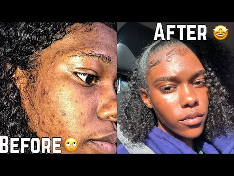 skin-|-how-to-get-rid-of-hyperpigmentation-(dark-spots)-less-than-a-month-|-fast!!!