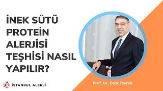 İnek Sütü Protein Alerjisi Teşhisi Nasıl Yapılır? - Prof. Dr. Dost Zeyrek