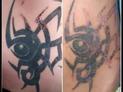 Tatuaż W Trakcie Usuwania Ciemny Tribal Na Brzuchu Ctl Wrocław