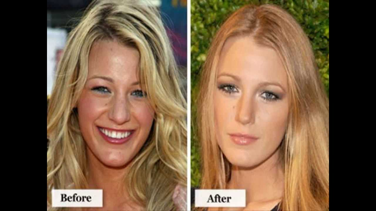 Reviews and before and after skin whitening pictures