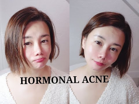 Hormonal Acne Part 1 | Skin Mantle Skin Barrier - highly controversial view of skin care