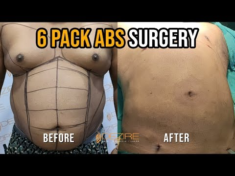 fastest-way-to-get-abs- -6-pack-abs-creation-by-vaser-hi-def-liposuction-surgery-in-hindi-in-india