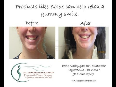 Botox For A Gummy Smile Video Exclusive - YouTube