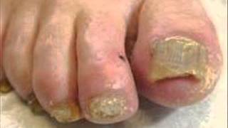 Fungal foot infection 1 HEALTH EDUCATION INFECTION CONTROL ICSP94 URDU / HINDI