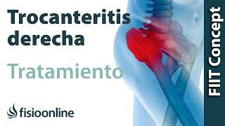 Trocanteritis derecha - Visión desde la fisioterapia y la medicina natural