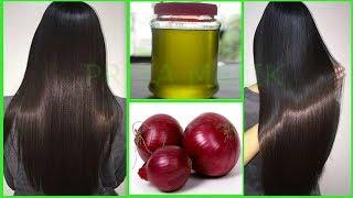 Homemade Onion Hair Oil For Long Hair,Thick Hair,Shiny Hair | Fast Hair Growth, Stop Hair Fall