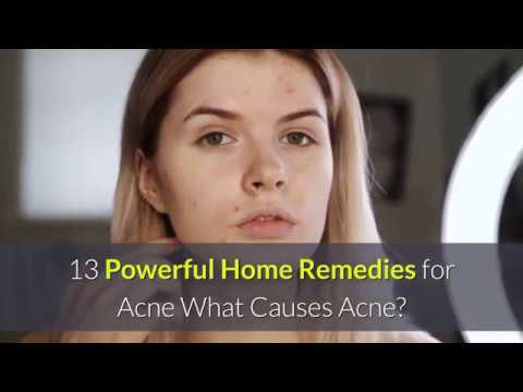 powerful-home-remedies-for-acne