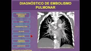 Pulmonar en de rayos x embolia signos