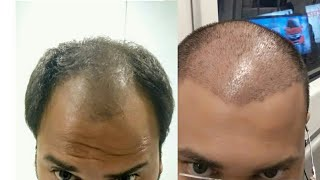 Before and After Hair transplant | Hairtransplant journey day 1 to day 20 | Hair Transplant in Delhi
