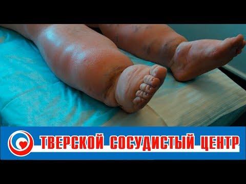 Лечение лимфостаза, лимфедемы (слоновость)
